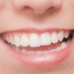 虫歯は食原病